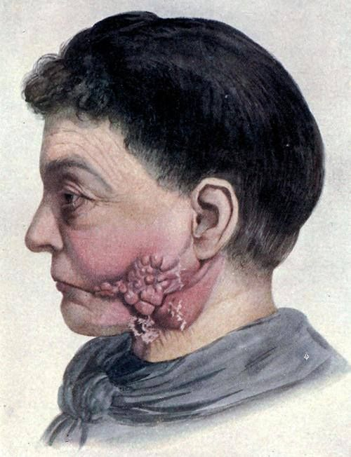 'Actinomycosis of the face' - a rare infection in humans, more commonly found in cattle. From 'Diseases of the Skin' by James H. Sequiera, 1919.