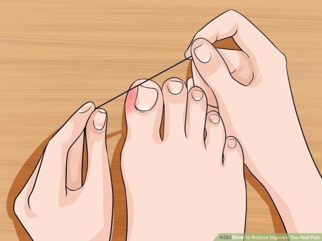 6 Awesome Tips to Make Your Feet and Toenails Look Fabulous