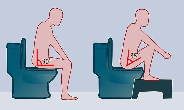 Soaring numbers of people claim using a 'Squatty Potty' helps them poo …
