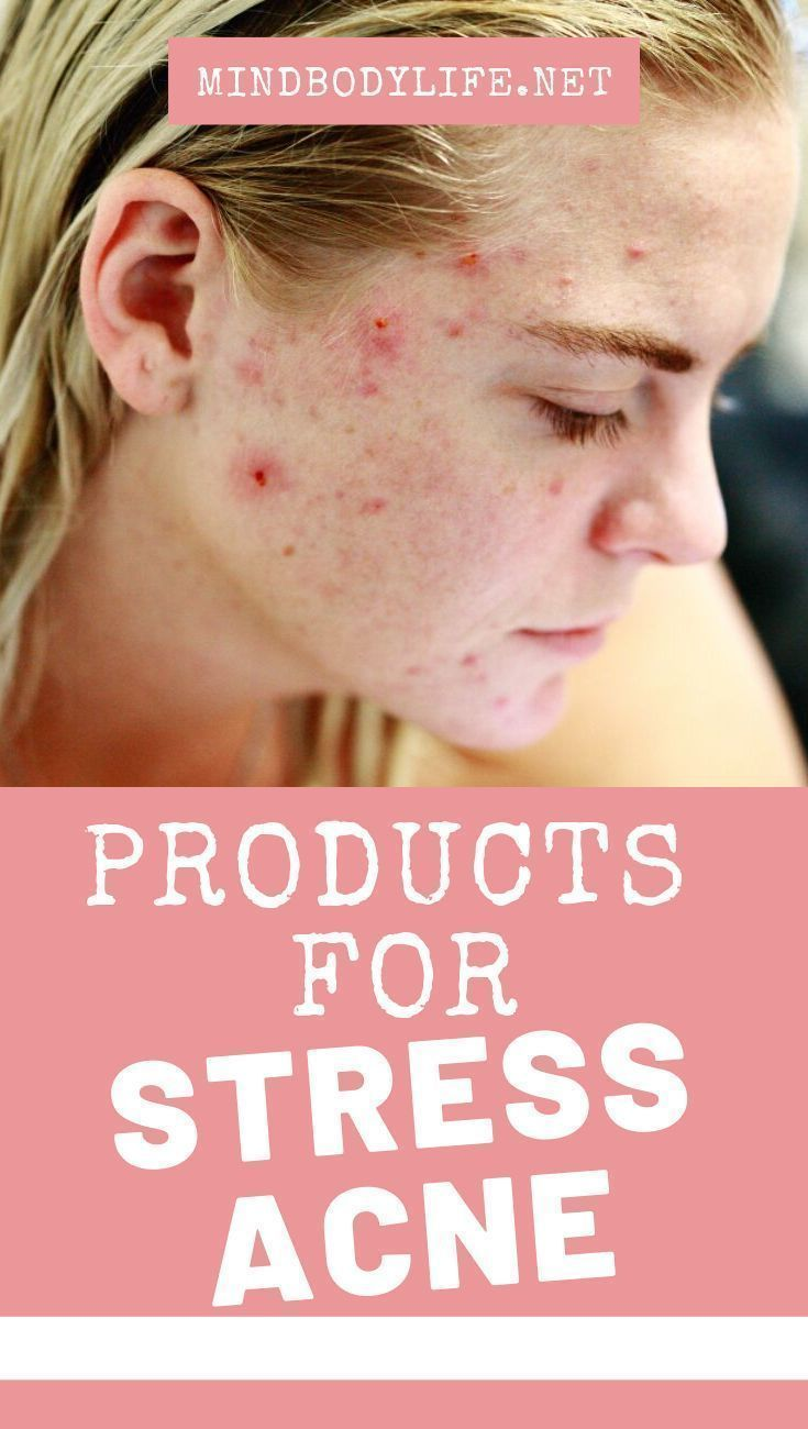 fd3ca15a32369f8f3859d8b7ab99b0c7 - How To Get Rid Of Acne Blackheads And Oily Skin