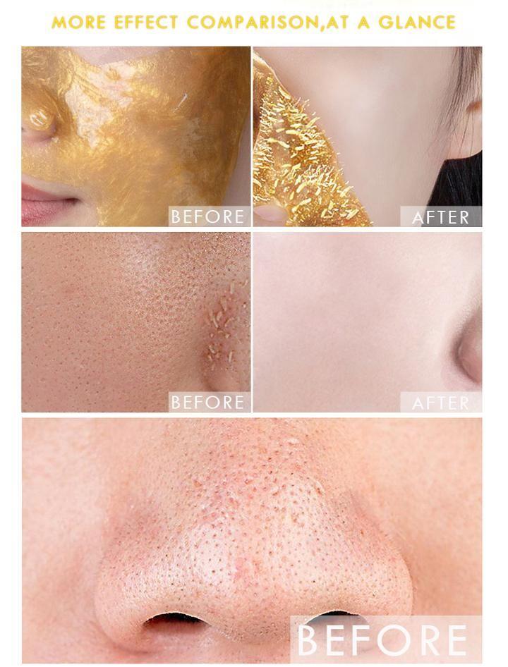 Gold mask blackhead remover