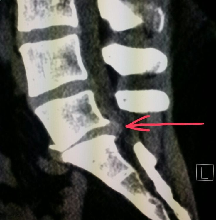 #Lumbar #spine #CT scan shows a #disc #herniation in a #patient with #back pain. #radiology#radiologist #pain #injury #trauma #lumbago #sciatica