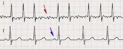 """In AF, the normal regular electrical impulses generated by the sinoatrial node are overwhelmed by disorganized electrical impulses usually originating in the roots of the pulmonary veins, leading to irregular conduction of ventricles impulses which generate the heartbeat. AF may occur in episodes lasting from minutes to days (""""paroxysmal""""), or be permanent in nature. The risk of stroke is increased 5-fold in individuals with atrial fibrillation"""