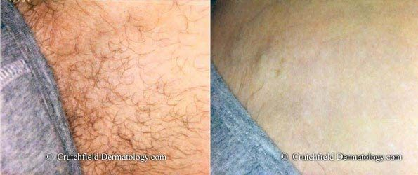 Before And After Laser Hair Removal Bikini Groin Area Laser Hair Removal Bikini Laser Hair Removal Hair Removal