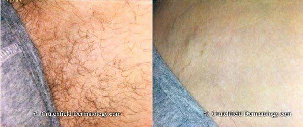 Skin Care Advice That Can Really Help You Bikini Laser Hair