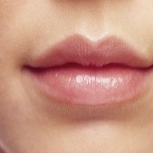 Ways To Get Naturally Soft Pink Lips - Remedies To Get Naturally Soft Pink Lips | Skin Care Treatment by SkinCare iHub