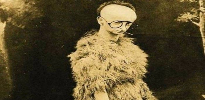 7 People With Rarest Of Human Oddities