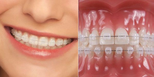 All About Braces For Teeth - http://emergencydentalcaretips.com/all-about-braces-for-teeth/ Learn about teeth braces cost types of braces for teeth teeth braces age limit braces for teeth cost in india teeth braces side effects braces for teeth price list braces price ceramic braces cost