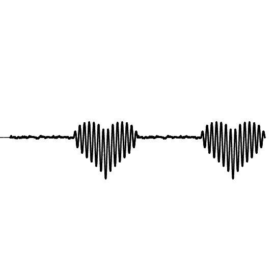 сердечных сокращений (версия чернил) электронная версия