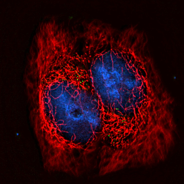 HIV (in green) travelling down the microtubules (in red) towards the cell's nucleus (in blue)  Technologies for imaging live cells are increasing our understanding of disease and are critical to the discovery and design of new drugs against HIV  Image courtesy Dave McDonald, University of Illinois/GE Healthcare