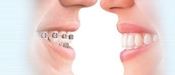 Braces are made of small pieces of metal or brackets made of ceramic substance. The dentist places it in a tight position that can be adjusted depending upon the complexity of a patient's case. This will control the teeth throughout the straightening process. Invisalign uses plastic liners and they are transparent. They are similar to guards placed in mouths. You can remove them while cleaning the teeth and eating.