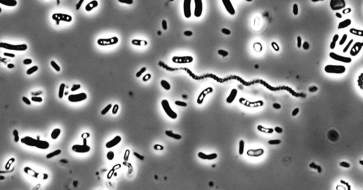 Bacteria in activated sludge from a wastewater treatment plant        It is a remarkable fact that we fully depend on microbes to treat or...
