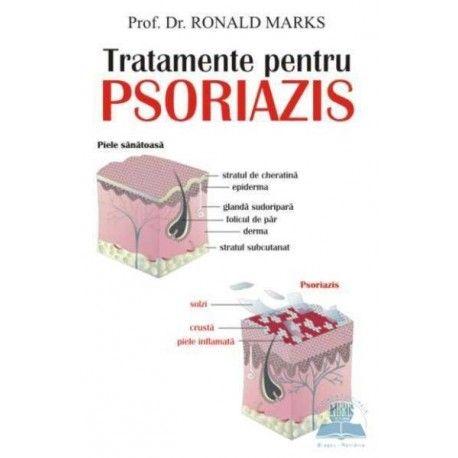 Tratamente pentru psoriazis (ed. tiparita)