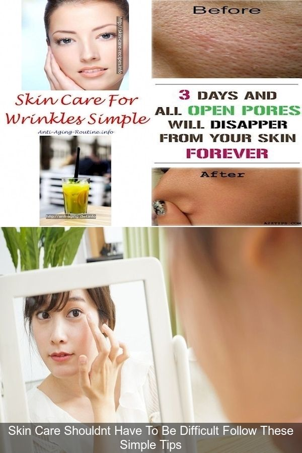 Here Is What Your Acne Is Trying To Tell You About Your Health Skinnyan Our Face Is The Reflection Of Our Body And Reflects W Skin Health Beauty Face Mapping
