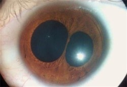 Polycoria - a medical condition of having multiple pupils in one eye.
