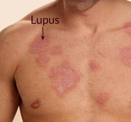 5-strange-facts-about-lupus