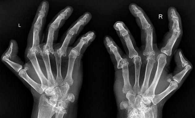 Artritis reumatoide por factores genéticos y ambientales
