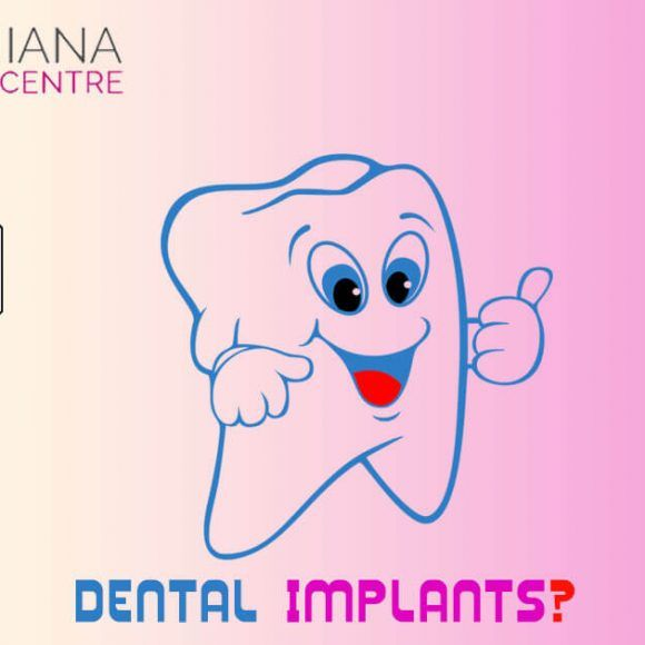 Visit the post to know differences between dental implants and dental  bridges.