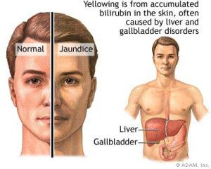 Living With Gilbert's Syndrome - Ways2GoHealthy