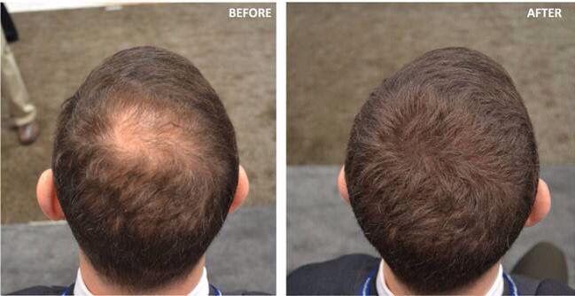 Befor and after applying Nanogen Keratin hair fibers www.nanogen.ae