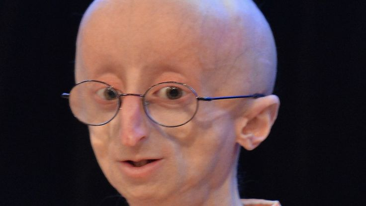 Sam Berns, 17, Public Face of a Rare Illness, Is Dead  -  Sam's life with progeria, a genetic disorder resulting in rapid premature aging, was the subject of a documentary film shortlisted for an Academy Award.