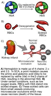Sickle Cell Anemia: An autosomal recessive inheritance caused by a point mutation of the hemoglobin beta gene (HBB) that affects the oxygen carrying pigment in red blood cells, hemoglobin. Changes in the hemoglobin-A chains of the red blood cells causes an alteration of the normal biconcave disc shape into the characteristic sickle cell shape. Image from Genes and Disease, by the National Center for Biotechnology Information (US).
