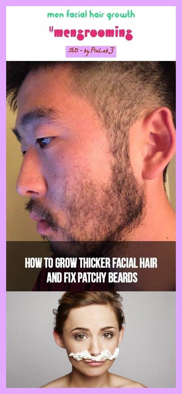 Female Hair Growth On Chin-3218