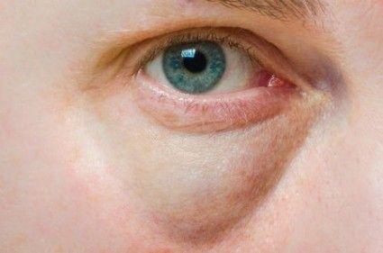 La debilidad de la vista se asocia más bien con la miopía o hipermetropía.Factores como la genética, la mala nutrición, el envejecimiento y la tensión exc