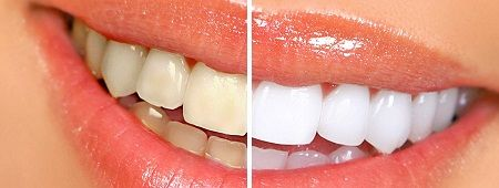 ABC Dental Care, family dental cosmetic dentistry procedure professionals in Las Vegas provides finest services to their patients at affordable cost. more information about visit our web site:http://www.abcdentalcare.com/