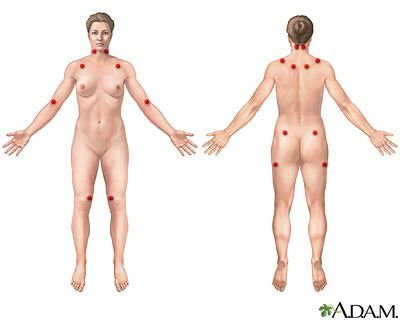Fibromyalgia Tender Points & Myofascial Trigger Points: What's the Difference?