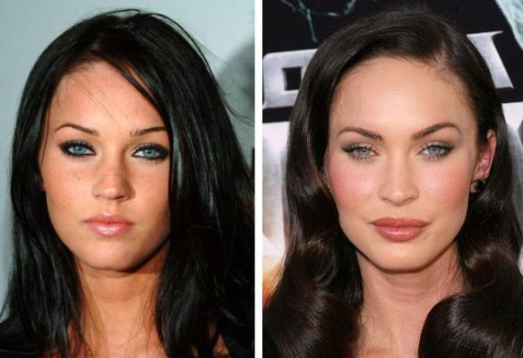 Megan Fox before after lip injection and chemical peel
