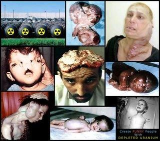 chernobyl radiation victims - Google Search