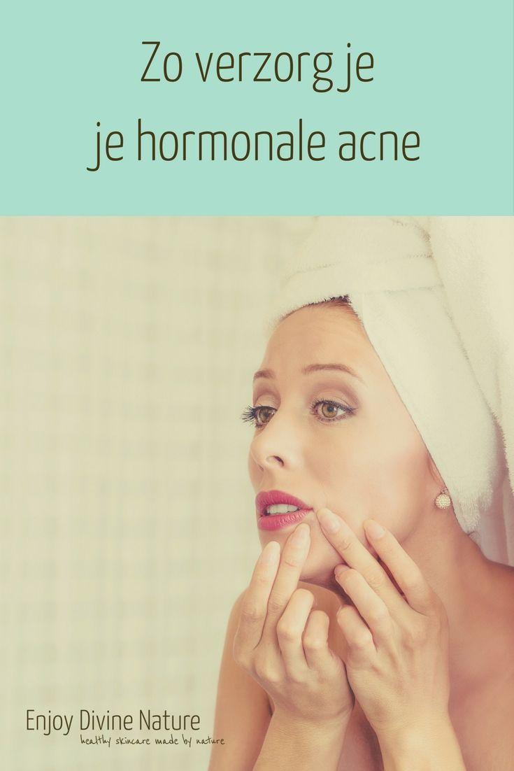 Zo verzorg je je hormonale acne Aan mijn gezicht kon je altijd goed zien waar ik was in mijn menstruatiecyclus. Na mijn ovulatie begon het al: premenstrueel acne. Ik was er zo klaar mee, dat ik de cursus Hormonale veranderingen bij de vrouw deed om het beter te begrijpen. Zodat ik het ook op kan lossen bij mezelf en anderen. Een van de dingen die je kunt doen, is je huid met andere producten verzorgen in de premenstruele acne tijd.
