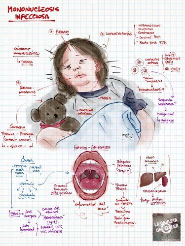 La Chuleta de Osler: Enfermedades infecciosas - Pediatría: Mononucleosis infecciosa