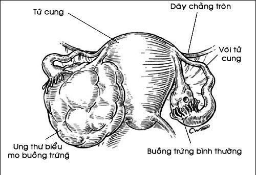ung thư biểu mô buồng trứng - akchongungthu