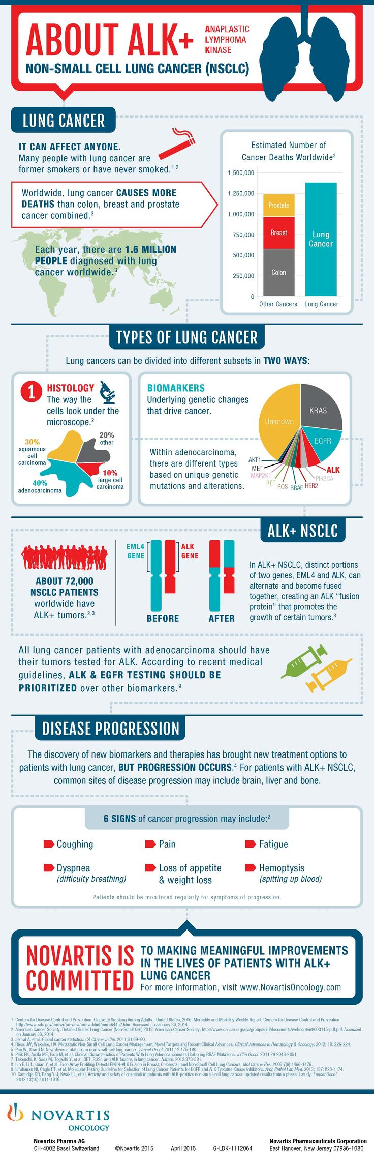 About ALK+ Non-Small Cell Lung Cancer