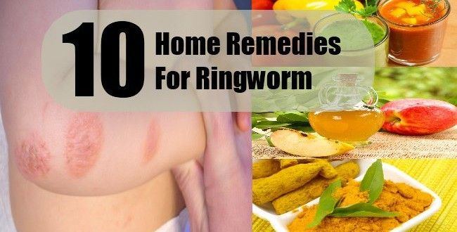 Top 10 Home Remedies for Ringworm #homeremedies #ringworm