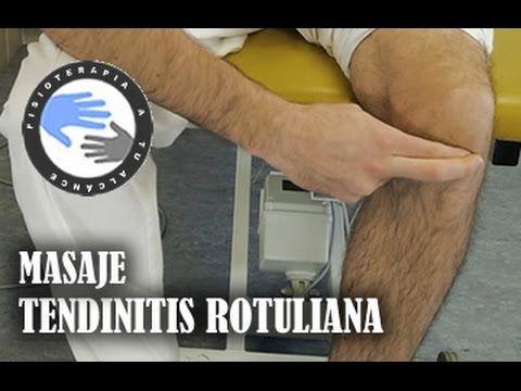 Masaje para la tendinitis rotuliana o de rodilla