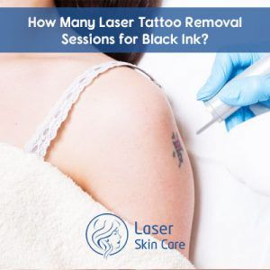 Do you have regret to get tattoos? Looking for tattoo removal treatment in Dubai, Abu Dhabi, Sharjah? Get best non surgical tattoo removal treatment on Here