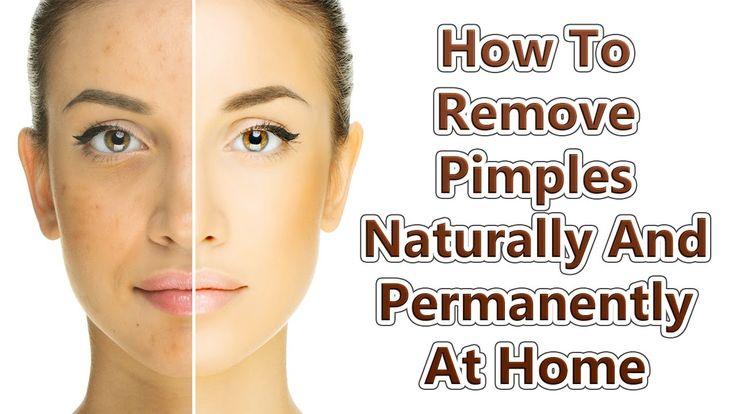 How To Remove Pimples Overnight | Acne Treatment | PrettyPriyaTV #Pimple #Skin #SkinCare #RemovePimple #Acne #Treatement https://femina.i360.pk/remove-pimples-overnight-acne-treatment-prettypriyatv/