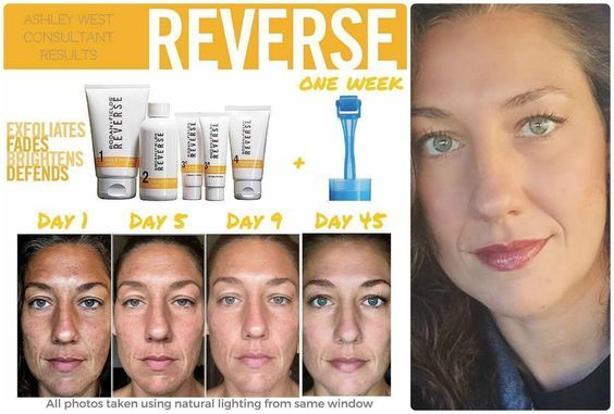 """Happy March!! Check out Ashley's GORGEOUS results using Rodan + Fields Award Winning skincare!!! What an AMAZING transformation after just 45 DAYS!! Results like Ashley's are WHY R+F is the FOURTH LARGEST and the FASTEST Growing Premium skincare in the US!! Here is what Ashley had to say: """"I didn't have great skin to start with, these products gave me great skin!"""