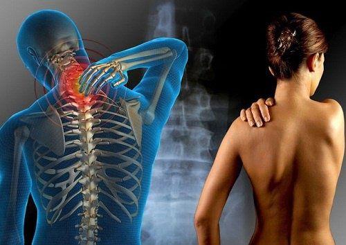 Chronische Muskelschmerzen und Müdigkeit? Das kann Fibromyalgie sein