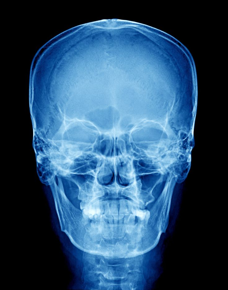 Special Interest Group 5, Craniofacia and Velopharyngeal Disordersl facilitates the highest level of knowledge and professional practice in the provision of care to individuals with craniofacial anomalies/cleft palate and velopharyngeal disorders.