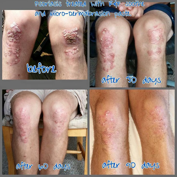 Psoriasis Start The Soothe Regimen Now And Be Ready For