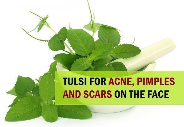 11 Mittel mit Tulsi zur Behandlung von Pickeln und Aknenarben im Gesicht, hier sind die besten Möglichkeiten, wie Sie Tulsi zur natürlichen Behandlung von Akne und Flecken versuchen können. #acnetreatment #pimplesovernighthowtotreat