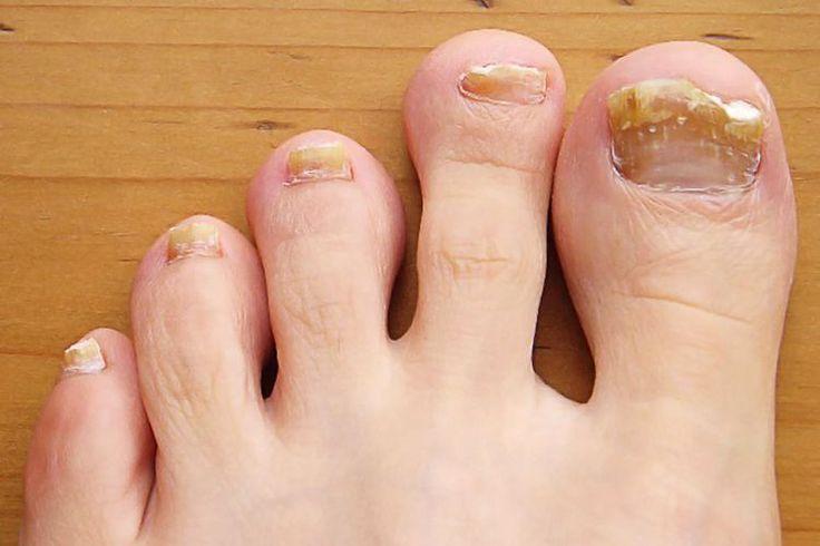 Common Toenail Problem Symptoms, Causes, and Treatment