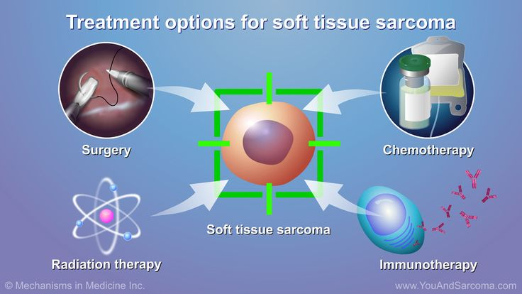 Surgery, radiation therapy, and chemotherapy are treatments that may be used alone or together.    Immunotherapy may be another option. slide show: diagnosing and treating soft tissue sarcoma. if you have a noticeable and unusual lump that isn't going away, bring this to your doctor's attention right away. the only reliable way to determine whether a tumor is benign or malignant is through a surgical biopsy. during this procedure, a doctor makes an incision or uses a special needle to…