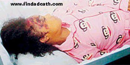 Celebrity Autopsy Photos Lisa Lopes