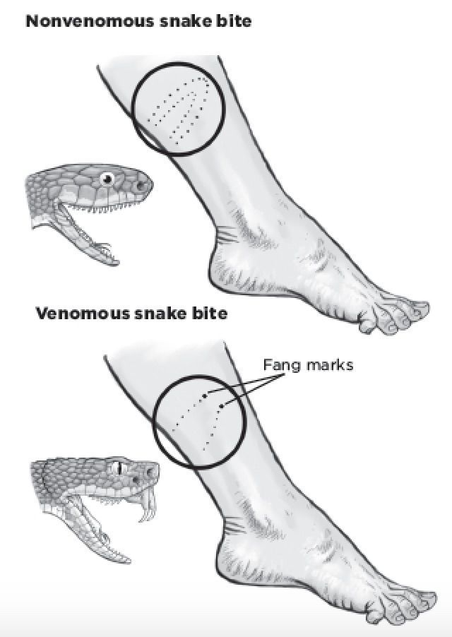 How to Identify a Venomous Snake By Its Bite  You're camping and need to start a fire, so you go looking for wood. You pick up a branch and feel a sharp pain in your hand. A snake slithers away into tall grass.  You won't always be able to identify the type of snake that bit you. #survivaltips