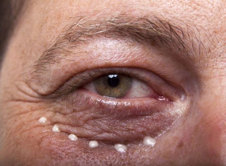 How to Get Rid of Under-Eye Lines & Wrinkles | Under eye ...